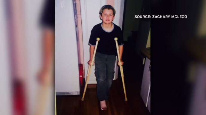 Zachary McLeod is pictured here at 11 years old recovering from a severe ankle injury he said was caused by a sharp edge on the waterslide at Canad Inns Fort Garry hotel in Winnipeg.