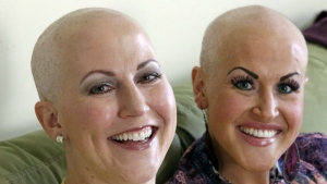 Annette Page, left, and her sister Sharee Page, pose for a photograph at Sharee's home during an interview, in Farmington, Utah on Thursday, May 26, 2016. (AP / Rick Bowmer)