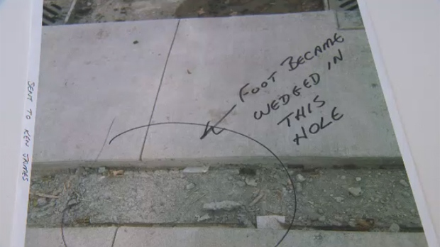 A Winnipeg woman is suing the city over a fall she said happened because of a faulty sidewalk.
