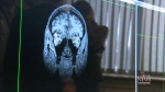 Slowing down the effects of Alzheimer's