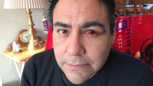 Bignell said he currently cannot see out of his left eye. (Jamie Dowsett/CTV Winnipeg)